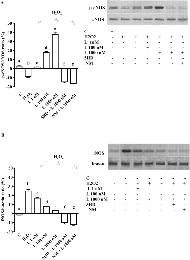 Effects of levosimendan on eNOS (A) and iNOS activation (B) in hepatocytes subjected to peroxidation. In A and B, densitometric analysis of p-eNOS and iNOS and an example of lanes taken in one of 5 different experiments performed for each experimental protocol. eNOS = endothelial nitric oxide isoform; iNOS = inducible nitric oxide isoform; L = levosimendan; NM = L-NAME. The other abbreviations are as in Figs 1 – 4 . In A, b, d, e, f, g P
