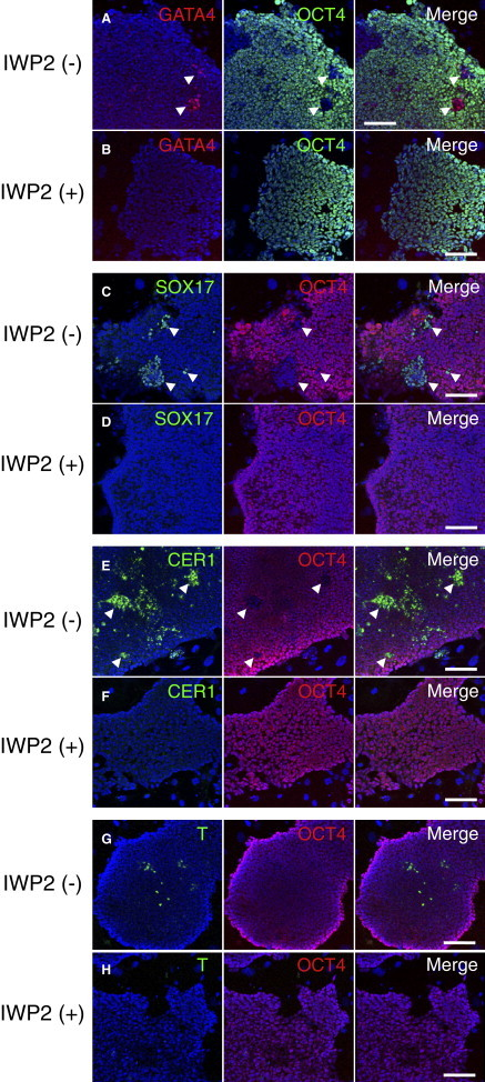 Effects of IWP-2 on Gene Expression in the 129C1 EpiSC Line Immunofluorescence images for GATA4 (red) and OCT4 (green) (A and B), SOX17 (C and D), T (E and F), and CER1 (G and H) in EpiSCs cultured without IWP-2 (A, C, E, and G) or with IWP-2 (B, D, F, and H). Nuclei were stained with TO-PRO3 (blue). Scale bar, 100 μm. See also Figures S5 and S6 .