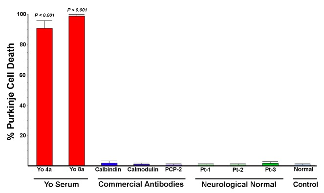 Comparison of Purkinje cell cytotoxicity produced by anti-Yo antibodies with cytotoxicity produced by commercial and patient antibodies reactive with other Purkinje cell cytoplasmic proteins. Rat cerebellar slice cultures were incubated for 72 hours with either 1) sera from patients with anti-Yo antibodies; 2) commercial antibodies to calbindin, calmodulin, or PCP-2/L7; 3) anti-Purkinje cells antibodies from the three neurologically normal patients studied, whose sera labeled Purkinje cell cytoplasm but did not react with Yo antigens; or 4) normal human IgG. Cultures were quantified for cell death as indicated by uptake of SYTOX dyes. Extensive Purkinje cell death was seen in cultures incubated with all 4 anti-Yo sera (data for 2 anti-Yo sera not shown). In contrast, cell death was not observed in cultures incubated with any of the three commercially obtained antibodies reactive with intracellular anti-Purkinje cell proteins nor with sera from Patients 1–3, despite extensive Purkinje cell uptake. Cultures incubated with normal human IgG exhibited only faint antibody accumulation by Purkinje cells and no detectable Purkinje cell death. Statistical significance between groups was determined by non-parametric Mann-Whitney ANOVA. Death in cultures incubated with anti-Yo antisera was statistically significantly greater than that seen in cultures incubated with commercial antisera, sera from patients 1–3, or normal human IgG.
