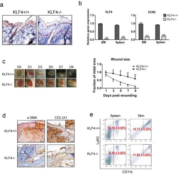 KLF4 ablation delayed cutaneous wound healing accompanied by decreased accumulation of MDSCs (a). KLF4 IHC staining in skin of RosaCreER/KLF4(flox) mice without (KLF4+/+) and with tamoxifen induction (KLF4−/−). The areas between two dotted red lines delineate skin suprabasal layers. (b). qRT-PCR to analyze expression of KLF4 and CCR2 . (c). Wound healing phenotypes (left, n=10) and the wound size quantification (right). (d). IHC staining of α–SMA and COL1A1 in KLF4+/+ and KLF4−/− mice at Day 3 after wound induction. (e). Flow cytometry using anti-Ly6G and anti-CD11b antibodies with spleen cells and single skin cells. Representative images from one of five mice in each group are shown (a, c, and d). Scale bars: 50 μm. Mean ± SEM. *p