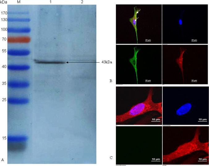 Confirmation of PmpD-N protein expression in HVT vector by immunoblotting assay and indirect immunofluorescence. (A) The PmpD-N expression in rHVT- pmpD -N was detected by immunoblot with C . psittaci strain 6BC-specific polyclonal antibodies. Lane M, pre-stained protein ladder; Lane 1, cell lysate post inoculation with rHVT- pmpD -N; Lane 2, cell lysate post inoculation with parental HVT. The black arrow indicates the approximately size of 43kDa. (B) Indirect immunofluorescence analysis of PmpD-N expression in CEF cells. CEF cells on glass coverslips were infected with rHVT- pmpD -N, then incubated with mouse anti-PmpD-N polyclonal antibody of C . psittaci and chicken anti-HVT polyclonal serum, and then reacted with goat anti-mouse IgG conjugated with Alexa Fluor 488 (green fluorescence, shown in the lower left panel) and goat anti-chicken IgY labelled with Alexa Fluor 568 (red fluorescence, shown in the lower right panel), respectively. Finally, cell nuclei were stained with DAPI (blue fluorescence, shown in the top right panel). The merged image is shown in the top left panel. The expression of the targeted protein is indicated by white arrows in top left panel. (C) Parental HVT control. CEF cells on glass coverslips were infected with parental HVT, and then the process of test and the panel meaning are the same as those shown in Fig 1B.