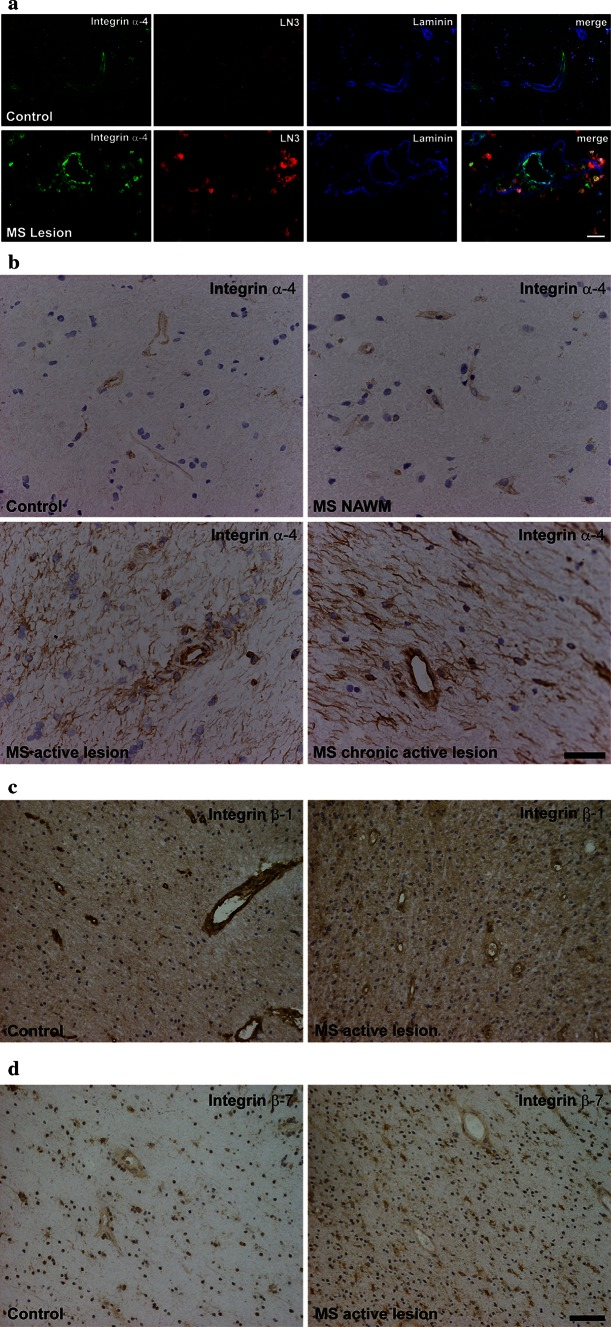 Expression of brain endothelial integrins α-4, β-1 and β-7 in human active white matter lesions in post-mortem material of MS cases compared to controls without clinical and autoptic evidence for a pathological CNS condition. MS lesion activity was characterised by myelin staining against proteolipid protein and against HLA-DR to visualise mononuclear immune cells and activated microglia (data not shown). a Immunoreactivity for integrin α-4 (CD49d) is labelled in green , HLA-DR (clone LN3) in red to visualise immune cells and <t>laminin</t> in blue to visualise the vascular basement membrane. The right column shows merged images. b DAB bright field stainings against integrin α-4 of samples from different cases than those shown in a to demonstrate tissue preservation, relation of blood vessels to the surrounding tissue and regulation of integrin α-4 expression. c , d Expression of integrin β-1 ( c ) or integrin β-7 ( d ) in active MS lesions versus control tissue, as demonstrated by DAB bright field stainings. Representative of autoptic samples from supratentorial white matter of seven different MS cases and four controls (1 tissue block per case). Scale bars 10 µm ( a , b ) or 50 µm ( c , d )