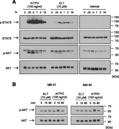 Eltrombopag induces Akt in human platelets and immature megakaryocytes. (A) Platelets from a healthy donor or (B) multiple myeloma-derived peripheral blood mobilized-CD34+ cells (MM#1 and MM#2) cultured for 8 days were stimulated with 100 ng/ml rhTPO or 10 μM eltrombopag for the indicated times, and immunoblotting was performed to detect the activation of STAT5 and Akt signaling pathways. Note that p-Akt bands appeared below non-specific bands in human platelets (A) and above non-specific bands in immature megakaryocytes (B) . Migration of molecular weight markers is indicated to the right of each blot.