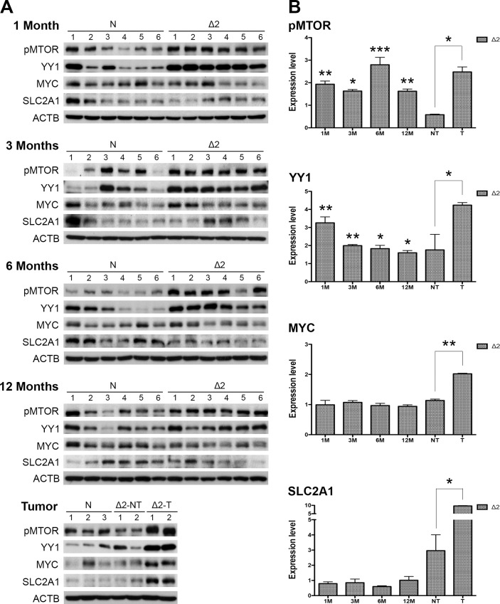 MTOR, YY1, MYC, and SLC2A1 signals were chronologically activated in pre-S2 mutant transgenic livers and HCCs: (A) Western blot analysis of the indicated biomarkers in different ages of pre-S2 mutant and non-transgenic livers, as well as paired nontumorous livers and tumors. Six livers were used in each group except the tumor stage due to small tumor size and low tumor formation rate. (B) Quantitative results were normalized by age-matched control livers.