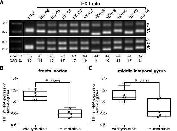 Wild-type and mutant HTT mRNA levels in adult-onset HD brain tissue. Wild-type and mutant HTT mRNA PCR products were separated on gel electrophoresis by differences in their CAG repeat length. (A) RT-PCR products from brain tissue derived from a control (H121) and 10 HD patients. Allelic CAG repeat sizes are indicated below each lane. gDNA from each sample was taken along to control for differences in PCR amplification efficiencies across the CAG repeat. (B) Whisker boxplot of allelic HTT mRNA expression levels in frontal cortex from 5 HD adult-onset HD patients. (C) Whisker boxplot of allelic HTT mRNA expression levels in middle temporal gyrus from 5 HD adult-onset HD patients. Expression levels relative to gDNA. Pair wise differences were evaluated using linear mixed model, n = 5.