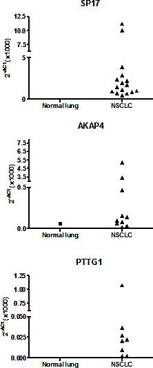 qRT-PCR analysis of CTA expression in cohort 1 Data are expressed as means calculated out of assays run in triplicate. β-actin was used as internal reference to compute the δCt values.