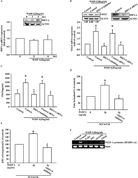 WISP-1 promotes VEGF-A expression in OSCC and contributing to angiogenesis through the HIF1-α signaling pathway (A) SCC4 cells were stimulated by WISP-1 (20 ng/mL) for the indicated times (0, 2, and 4 h). HIF1-α expression level was measured by western blot and qPCR. (B–E) SCC4 cells were pre-treated with HIF1-α inhibitor (1 μM) for 30 min or transfected with HIF1-α siRNAs for 24 h, followed by WISP-1 (20 ng/mL) stimulation for 24 h. The assay procedures were performed as described in Figure 3A–3D . (F) SCC4 cells were incubated with FAKi, PP2, AG1478, or U0126 for 30 min, followed by stimulation with WISP-1 (20 ng/mL) for 60 min. Chromatin immunoprecipitation (ChIP) assays were performed using an anti-HIF1-α antibody. One percent of the precipitated chromatin was analyzed to verify equal loading (input). Data are expressed as the mean ± SEM. * P