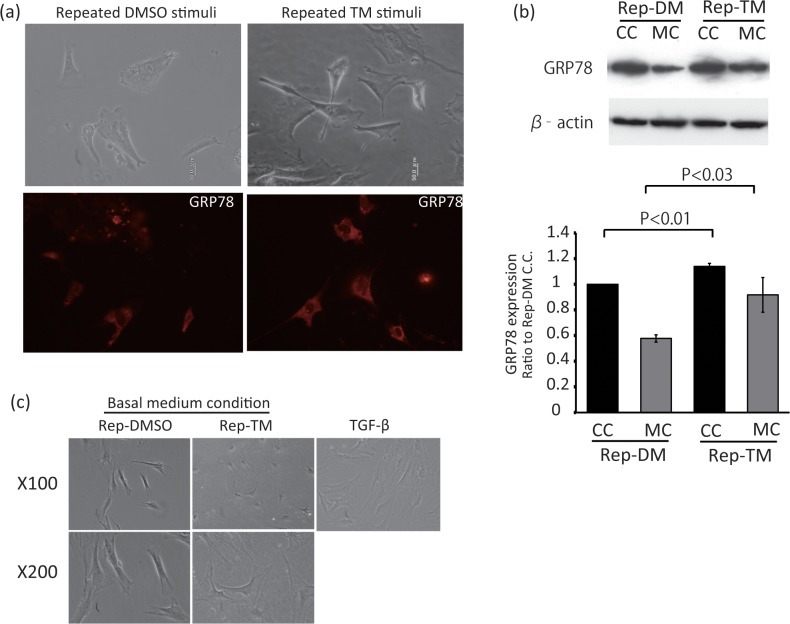 Effects of repeated TM stimulation on fibroblasts' morphology and GRP78/BiP expression. Primary cultured fibroblasts were treated with 1μg/ml TM or DMSO for 5 minutes per day 3 days in series. After this repeated TM or DMSO stimulation, medium was changed to DMEM with 2% horse serum (Basal medium condition) and incubated for 12h to induce differentiation. Primary cultured fibroblasts were treated with 1μg/ml TM or DMSO for 5 minutes per day 3 days in series. (a) Just after this repeated TM or DMSO stimulation, the cells were observed (upper panels) and stained by anti-Bip antibody (bottom panels). (b) The cells treated with TM (Rep-TM) or DMSO (Rep-DM/Rep-DMSO) cultured in the culture condition medium (C.C.) or in the Basal medium condition for differentiation (M.C.) were collected and lysed. Western blot analysis was performed using an anti-Bip or <t>anti-β-actin</t> primary antibody (upper panels). Quantitative data were obtained by densitometry of the bands. Data are expressed as the mean ± SEM for at least three independent experiments (shown as a ratio of the Rep-DM C.C.). The P value was compared with the control and calculated by Student's T test. (c) Left and middle panels show the cells treated with TM (Rep-TM) or DMSO (Rep-DMSO) cultured at Basal medium condition. Right panel shows the cells treated with TGF-β1 after the incubation at the basal medium condition.