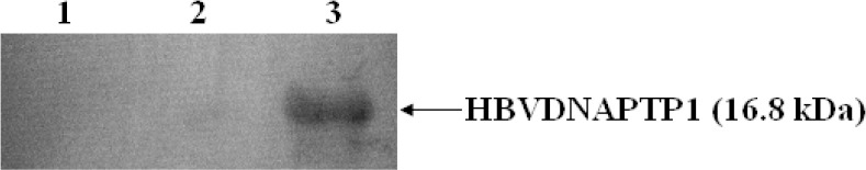 Western blot analysis of transient expression of HBVDNAPTP1 in THP-1 cells. lysates from THP-1 cells (lane 1). lysates from THP-1 cells transfected with pcDNA3.1(-)/myc-His A (lane 2). lysates from THP-1 cells transfected with pcDNA3.1(-)/myc-His A-HBVDNAPTP1 (lane 3)