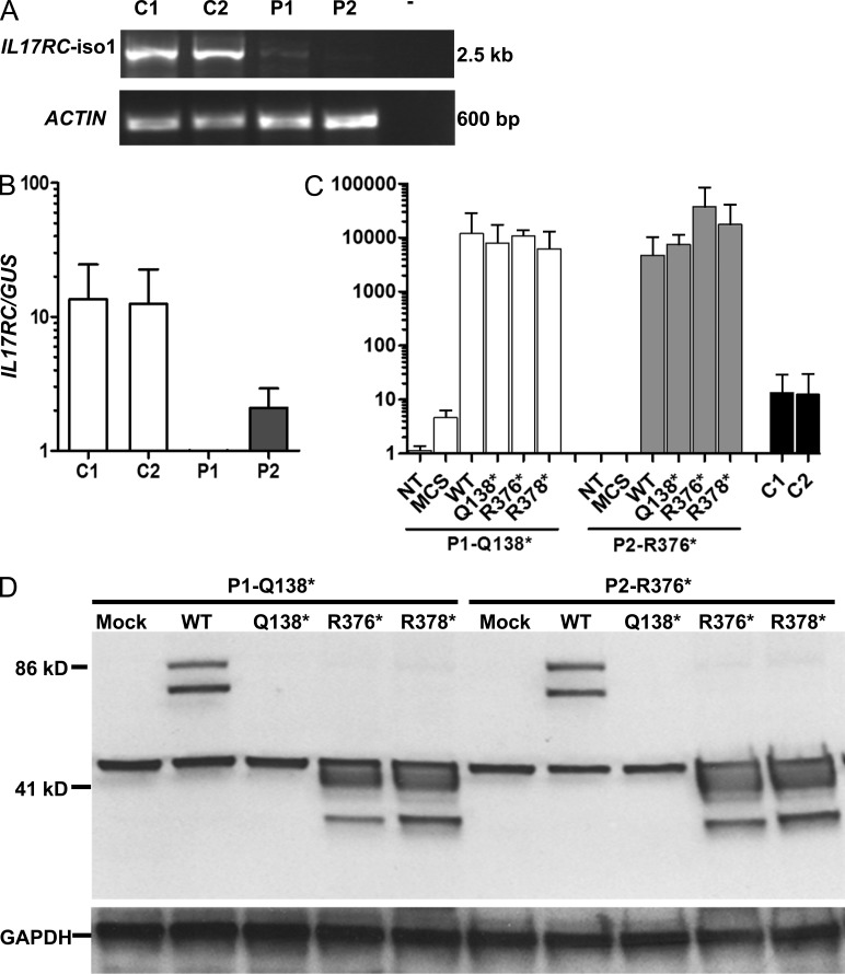 Expression of IL-17RC in fibroblasts from controls and patients. (A and B) Amounts of IL17RC cDNA generated from SV40-immortalized fibroblasts from two controls and two patients (P1 and P2), as determined by full-length RT-PCR (A) and TaqMan assays (B). (C) Amounts of IL17RC cDNA obtained from the SV40 fibroblasts of P1 and P2 either left untransfected (NT) or transfected with pUNO1, either empty (MCS) or encoding the WT, Q138*, R376*, or R378* IL-17RC. Results are also shown for the SV40 fibroblasts of two controls tested in parallel (C1 and C2). Means ± SD (error bars) of three independent experiments, as detected by quantitative PCR, are shown. β-ACTIN and GUS were used as endogenous controls. The experiments were repeated at least three times. (D) IL-17RC expression in P1's and P2's SV40 fibroblasts transfected with WT or mutant IL17RC alleles, as assessed by Western blotting. IL-17RC protein levels in SV40 fibroblasts from P1 and P2 transfected with the empty pUNO1mcs plasmid (mock) or the pUNO1 plasmid, encoding the WT or one of the three mutant (Q138*, R376*, or R378*) IL-17RC proteins, as determined by Western blotting with an anti–IL-17RC antibody (directed against amino acids 113–258). The anti-GAPDH antibody was used as a control for protein loading. These experiments were repeated at least three times.