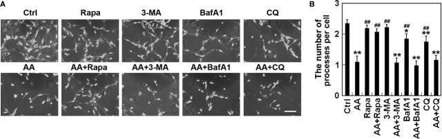 Influence of autophagy stimulator or inhibitors on aurantiamide acetate-induced cell death. U87 cells were incubated with 25 μM aurantiamide acetate (AA), 10 nM rapamycin (Rapa), 10 mM <t>3-methyladenine</t> (3-MA), 40 nM Bafilomycin A1 (BafA1), 10 μM chloroquine (CQ), 25 μM AA plus 10 nM Rapa, 25 μM AA plus 10 mM 3-MA, 25 μM AA plus 40 nM BafA1, or 25 μM AA plus 10 μM CQ. Cells without drug treatment were used as control (Ctrl). (A) Representative images were presented; scale bar, 50 μm. (B) The number of processes per cell was quantified from six micrographs. At least 30 cells per micrograph were analysed. * P
