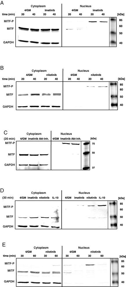 Upon treatment of moDC with imatinib, nilotinib, IL-10 or MK2206, MITF translocates into the nucleus. Western blot analysis of MITF level and phosphorylation status in the cytoplasmic or nuclear fraction of purified immature CD209 + moDC. moDC were generated in vitro with GM-CSF and IL-4 alone (4/GM) or with (A) imatinib (3 μM), (B) nilotinib (3 μM), (C) Akt inhibitor MK2206 (Akt-inh.; 300 nM) or (D) IL-10 (10 ng/mL). (E) Cells were treated with nilotinib (3 μM). Indicated time refers to further treatment of cells prior to cell lysis (see Methods ). GAPDH served as loading control. Exemplary results from at least three independent experiments using different donors are presented.