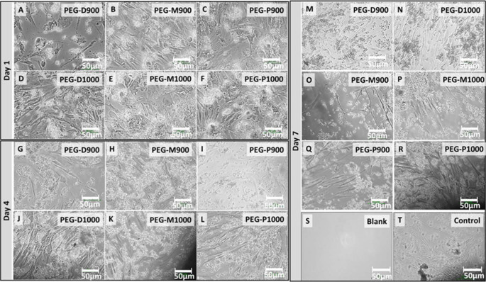 Optical micrographs of the live fibroblast cells at wells adjacent to the PEG-impregnated BA scaffolds sintered at 900 and 1000°C derived from the three different femoral sections at day-1 (A – PEG-D900, B – PEG-M900, C – PEG-P900, D – PEG-D1000, E – PEG-M1000, and F – PEG-D1000), day-4 (G – PEG-D900, H – PEG-M900, I – PEG-P900, J – PEG-D1000, K – PEG-M1000, and L – PEG-D1000), and day-7 (M – PEG-D900, N – PEG-D1000, O – PEG-M900, P – PEG-M1000, Q – PEG-P900, and R – PEG-P1000) just before the AB assay. Images of (S) negative control or blank (only medium in well, without cell and scaffold) and (T) positive control (only medium and cells in well, without scaffold) wells after day 7 are presented for comparison. All the scale bars are 50 µm. Amount of live cell concentration is higher in the wells for the PEG-treated scaffolds sintered at 1000°C compared to 900°C.