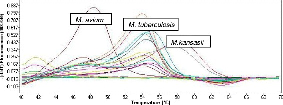 Sigmoid amplification curves captured during anealing and elongation step by the Roche LightCycler 480 II indicating the detection of M. tuberculosis , M. avium or M. kansasii.