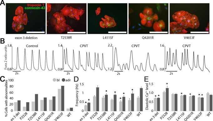 Characterization of CPVT-iPSCs derived CMs. (A) Immunocytochemical stainings of cardiac markers where red represents troponin T, green connexin-43 and blue DAPI-staining for nuclei. Scale bars 200 μm. (B) Representative traces of a control CM showing normal regular Ca 2+ transients and CPVT1 CMs showing abnormalities like multiple peaks, low peaks, irregular phases and oscillations in Ca 2+ handling. (C) Quantification of percentage of CPVT1 and control iPSC CMs exhibiting abnormal Ca 2+ transients at baseline (bl) and during adrenaline perfusion (adr). (D) Frequency and (E) Diastolic level of intracellular Ca 2+ of all CPVT1 and control CMs. Numbers of cells analyzed in C, D, and E, exon 3 del n = 48, P2328S n = 72, T2538R n = 52, L4115F n = 110, Q4201R n = 63, V4653F n = 29, Controls (WT) n = 28. As an exception, number of WT cells analyzed in D, and E, in bl n = 54 and adr n = 27 and number of P2328S cells in bl n = 90 and adr n = 47. Grey bars indicate cells at baseline and black bars during adrenaline perfusion. Error bars, SEM. *P