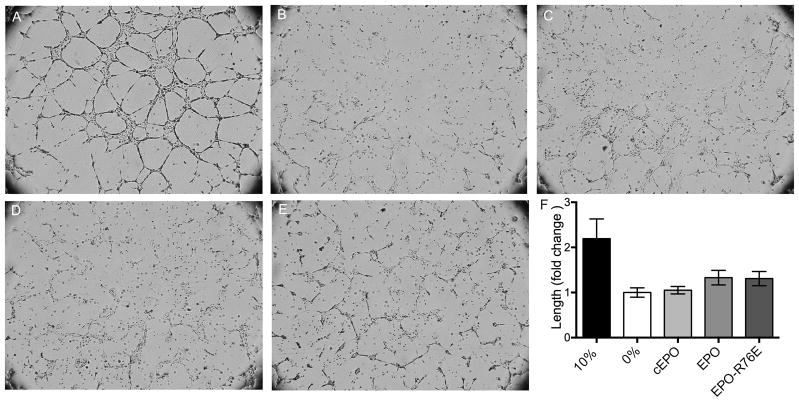 Neither EPO nor EPO-R76E induce tube formation in HRMECs. A–E) Brightfield micrographs of HRMECs treated with A) 10% serum, B) 0% serum, or C) commercial EPO, D) EPO, or E) EPO-R76E in 0% serum. F) Bar graph quantification of lengths of tube walls in each condition. Error bars indicate SEM.