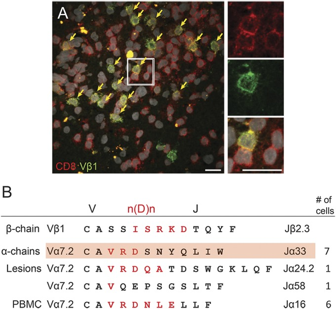 Expanded Vβ1 chain pairs with MAIT cell–related α chains (A) Cluster of expanded Vβ1 + T cells within multiple sclerosis (MS) lesions. Immunohistochemistry for the expanded and persisting Vβ1 clone (green) in clusters of CD8 + T cells (red) in parenchymal MS lesions. Several such clusters were observed. Only very few scattered CD8 − Vβ1 + T cells could be identified in the brain lesion. Nuclei are visualized with 4',6-diamidino-2-phenylindole (white). Scale bar 20 µm. (B) Sequences of paired T-cell receptor (TCR) α and β chains. Single sorted or laser microdissected Vβ1 + CD8 + T cells from peripheral blood or brain sections were submitted to single-cell TCR PCR to identify Vβ1 chains and all possible matching α chains. The V, n(D)n, and J regions are indicated. Amino acids encoded by n(D)n nucleotides are printed in red. The expanded Vβ1-Jβ2.3 β chain (upper line) was found to pair with 4 different α chains. Three α chains were identified from brain lesions, and 1 α chain was found in blood. The α chains expressing the Jα33 (second line) and Jα16 (fifth line) elements were identified in 7 and 6 independent cells, respectively. All α chains share the Vα7.2 element, and even though they do not share the same Jα element, they all show homologous complementarity determining region 3α regions with a conserved valine (V) followed by a positively charged arginine (R) (with only one clone showing a glutamine [Q]), a negatively charged amino acid (D/E), and a relatively large hydrophilic amino acid. One of the α chains (highlighted in red) is the mucosal-associated invariant T (MAIT) cell canonical TCR Vα7.2-CAXXDSNYQLIW-Jα33 chain with 2 N nucleotide–encoded amino acids between Vα7.2 and Jα33 (here VR). The other clones with Jα16, Jα24.1, and Jα58 chains are atypical for MAIT cells, which usually carry Jα33, Jα20, or Jα12. PBMC = peripheral blood mononuclear cell.