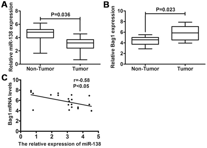 Expression of miR-138 and Bag-1 in gallbladder carcinoma specimens. (A) The expression of miR-138 was determined in gallbladder carcinoma tissues compared with matched normal adjacent gallbladder tissues using qRT-PCR. (B) Relative expression of Bag-1 at mRNA level was examined in gallbladder carcinoma tissues compared with matched normal adjacent gallbladder tissues using qRT-PCR. (C) Inverse correlation between miR-138 and Bag-1 expression in gallbladder carcinoma tissues using Pearson's correlation coefficient. The expression of miR-138 was normalized to that of U6, and the expression of Bag-1 mRNA was normalized to that of β-actin in each sample.