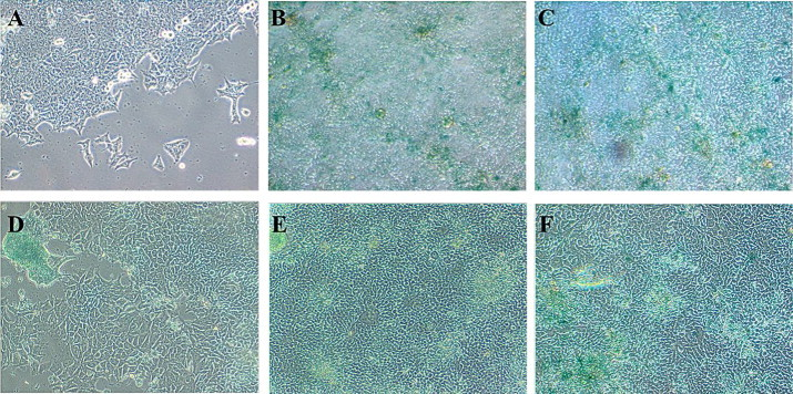 Phase contrast micrographs of (A) untreated/control HCT-15 cells, and (B–H) treated HCT-15 cells with apigenin (conc. range from 1.5625 to 25 µM) stained with senescence Cells Histo-chemical staining kit after 5 day drug treatment regimen. Cells stained as blue/green represent senescent cells.