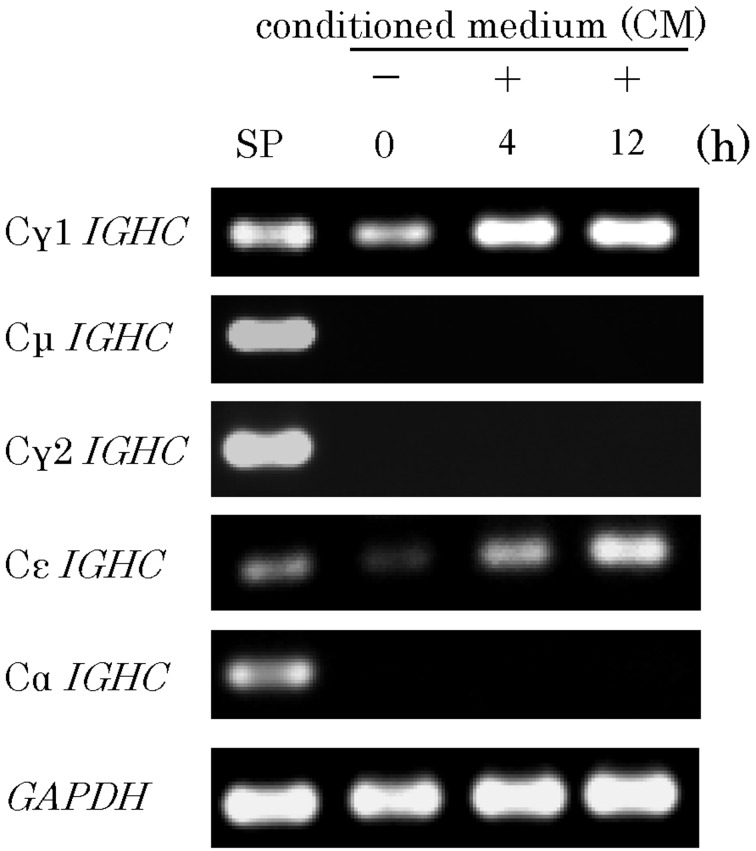 Expression of gerbil IGHC mRNAs by B11D2(C2) cells. Total RNA was extracted from gerbil spleen (SP; lane 1), B11D2(C2) with no stimulation (lane 2), B11D2(C2) after 4 h culture in 20% D9(E6)C2B3-CM (lane 3), or after 12 h in 20% D9(E6)C2B3-CM (lane 4). RT-PCR products were electrophoresed and stained with ethidium bromide.