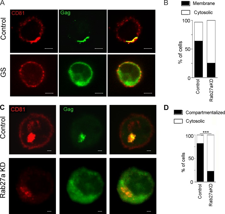 Rab27a controls Pr55 Gag recruitment to cell membranes in CD4 + T cells and macrophages. (A) 3D deconvolution fluorescence microscopy of HIV-1–infected PBMCs from a healthy control or a GS patient stained at day 4 p.i. with anti-p24 (green) and anti-CD81 antibodies. Shown is a 3D maximum intensity projection of 10 optical sections acquired at 0.2-µm intervals. (B) Quantitation of PM versus cytosolic distribution of Gag was evaluated by blinded observers on a per-cell basis, in 100 cells of each condition. Data are expressed as percentages of cells in each category. (C) LSCM of HIV-1–infected control or Rab27a-silenced MDMs stained at day 5 p.i. with anti-p24 (green) and anti-CD81 antibodies. (D) Quantification of Gag distribution was performed as described in B. ***, P