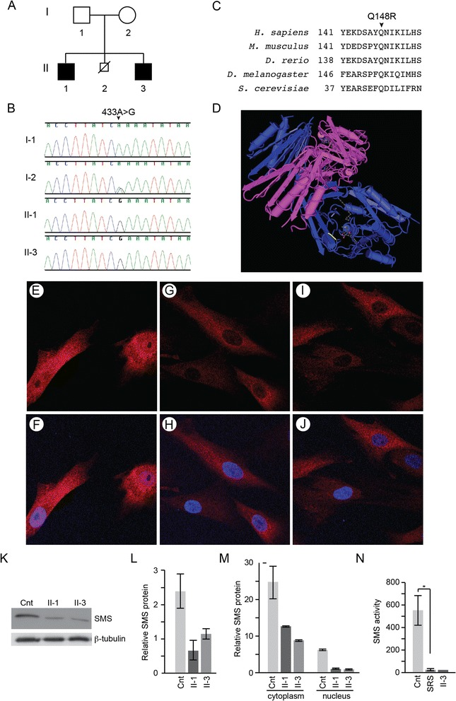 Segregation, mutational analysis, and functional consequences of a novel SMS variant. A . Pedigree of the family of the propositi. Affected males are shown by black squares. B . Sanger sequencing chromatograms showing the segregation of the SMS mutation NM_004595.4:c.443A > G from the carrier mother to the affected boys. The unaffected father did not have this mutation. C . Conservation of the p.Gln148 (p.Q148) residue across species. D . Drawing of the human SMS protein crystal complexed with spermidine and 5-methylthioadenosine. The mutated amino acid (Gln148) is highlighted in yellow [Mac PyMOL [ 23 ]]. E - J . Immunofluorescent detection of SMS protein subcellular distribution in unaffected (E, F) , Patient II-1 (G, H) and Patient II-3 (I, J) skin fibroblasts. SMS protein is shown in red and the nucleus is shown in blue. K . Immunoblot of skin fibroblast lysates showing reduced SMS protein levels in the patients (II-1, II-3) compared to an unaffected control (cnt). Tubulin is shown as a loading control. L . Graph showing steady state SMS protein levels in the patient and control fibroblasts relative to ß-tubulin levels. The data are based on 3 independent experiments for each cell line. M . Graph quantifying immunoblot detected steady state SMS protein levels in the cytoplasm and nuclei of patient and control fibroblasts. The cytoplasmic expression was normalized to β-tubulin expression and the nuclear expression to p84 expression. The data are based on 2 independent experiments for each cell line. N . SMS enzyme activity (spermidine d8 peak per hour) in lymphoblasts of unaffected individuals (Cnt), a cohort of 4 individuals with SRS (SRS) and patient II-1, * p