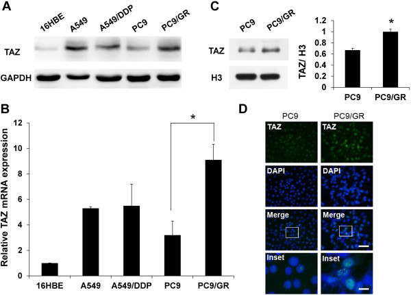 Enhanced expression of TAZ in gefitinib-resistant cell. (A) Lysates derived from human bronchial epithelial cell line 16HBE, lung adenocarcinoma cell lines A549, cisplatin-resistant A549/DDP, gefitinib-sensitive PC9 and gefitinib-resistant PC9/GR were analyzed by western blot using anti-TAZ antibodies. The levels of GAPDH were detected as loading controls. (B) Relative mRNAs of TAZ in lung cancer cell lines were examined by real-time PCR. The endogenous b-actin RNA was used as the internal control. (C) Nuclear fractions in PC9 and PC9/GR cell lines were analyzed by western blot. The levels of histone H3 were detected as loading controls. Densitometric evaluation of TAZ:H3 ratios is illustrated in graph beside. Data are shown as means ± SEM. n=3. Statistical analyses were carried out using Student's t-test. Significance: * P