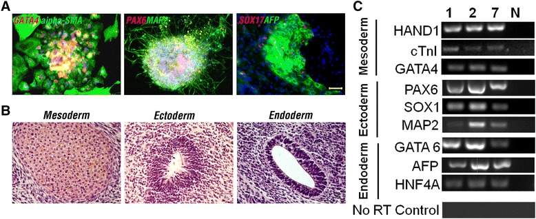 In vitro and in vivo differentiation of human granulosa cell-derived induced pluripotent stem cells. (A) Immunofluorescence staining against three germ layer markers in a representative induced pluripotent stem cell line (iGRA1) following in vitro differentiation. (B) Hematoxylin and eosin staining of teratoma derived from a representative iGRA line (iGRA1). (C) RT-PCR analysis of expression of genes associated with three germ layers in in vitro differentiated iGRAs. 1, 2 and 7, iGRA1, iGRA2, and iGRA7, respectively. N, RNA transcripts untreated with reverse transcriptase (no RT control) served as a negative control for genomic DNA contamination. Scale bars = 50 μm (A) and 30 μm (B) .