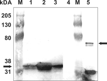 Western blot analysis of total proteins from T. thermophila cells expressing TtsfGFP, sfGFP, or EGFP. Equal amounts (30 μg) of EGFP (Lane 1), TtsfGFP (Lane 2), and sfGFP (Lane 3) were loaded. The left arrow shows a molecular mass of around 34 kDa corresponding to TtsfGFP. The quantity of TtsfGFP in the total protein extract appeared to be approximately 5–10-fold higher than sfGFP and EGFP. Total protein extracted from a Tetrahymena B2086 and CU428 cell mixture was used as a negative control (Lane 4). The positive control was TtsfGFP, which was constructed, expressed, and purified using Ni-NTA affinity purification from E. coli . The ~68 kDa band was predicted to be an sfGFP dimer (right arrow). Western blotting was performed with a monoclonal mouse anti-GFP antibody (1:1000). M: Bio-Rad Kaleidoscope western markers.