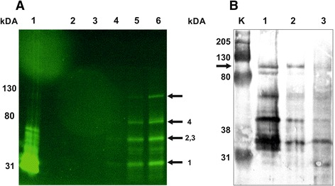 Fluorescent and western blot analysis of the hypothetical ATP dependent DNA ligase domain containing protein. A. SDS-PAGE was carried out in a discontinuous slab gel under semi-denaturing conditions by omitting mercaptoethanol from the sample buffer and without boiling. About 15 μg of total protein were loaded in each lane. Gels were visualized with Bio-Rad Gel Doc EZ using the blue sample tray for GFP. Lane 1: affinity purified 6 × His-TtsfGFP from Eschericha coli ; lane 2: untransformed T. thermophila total cell protein (negative control); T. thermophila with pVTtsfGFP-H induced with 0.25 μg/mL of CdCl 2 for 3 h; lane 3: zero time, lane 4: 1 h, lane 5: 2 h, lane 6: 3 h. B. The 6 × His-TtsfGFP-H fusion protein purified from T. thermophila pVTtsfGFP-H clone was induced for 18 h and analyzed with western blotting by using monoclonal mouse anti-GFP antibody (1:1000). The 6 × His-TtsfGFP-H was approximately 95 kDa (Lane 1, black arrow), as expected. Many fragmented proteins were also visible. Moreover, some of the target and fragmented fusion proteins were lost during washing (Lane 2) and flow-through (Lane 3) steps of Ni-NTA affinity purification. The predicted size of the fragments based on the rare codons plus 6 × His-TtsfGFP would be approximately 36.7 kDa (Arrow 1), 48 kDa (Arrow 2) and 50 kDa (Arrow 3). The roughly 70 kDa band could be dimer of these broken fusion proteins caused by the dimerization of sfGFP (Arrow 4). M: Bio-Rad Kaleidoscope western marker.