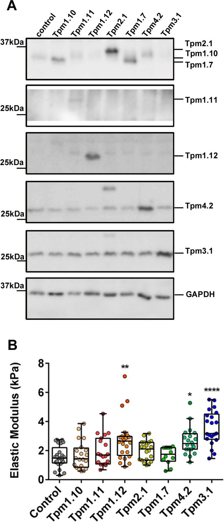 Distinct Tpm isoforms differentially impact on the elastic modulus of the cell. Tpm-overexpressing clones were generated by the stable transfection of Tpm containing vectors. (A) 10 μg of total cellular protein isolated from the Tpm- clones was analysed by SDS-PAGE followed by western blotting. Shown are representative blots probed with the Tm311 (detecting Tpm2.1, Tpm1.10, Tpm1.7), α/9b (Tpm1.11), α/9c (Tpm1.10, Tpm1.12), δ/9d (Tpm4.2), γ/9d (Tpm3.1), and GAPDH antibodies. (B) The elastic (Young) modulus for each Tpm-overexpressing clone was determined. All the data points are presented as box and whisker plots/scatter dots with horizontal line (inside box) indicating median and outliers. 12–25 cells for each clone was measured from n = 3 independent experiments. * P