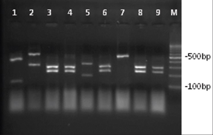 Agarose gel electrophoresis of ITS-PCR products of clinical yeast strains after digestion with <t>Msp</t> I . Lane 1: C. guilliermondii , lane 2: C. glabrata , lane 3,4,6,8,9: C. albicans , lane 5: C. tropicalis , lane 7: C. parapsilosis , and lane M: 100 bp Ladder