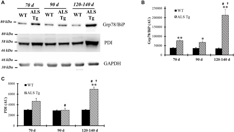 ER chaperones Grp78/BiP and protein disulfide isomerase (PDI) are up-regulated in skeletal muscle of G93A*SOD1 ALS-Tg mice. (A) WG muscle tissues were used to determine Grp78/BiP and PDI expressions using western blot technique from different ages of wild-type (WT) and transgenic G93A*SOD1 (ALS-Tg) mice. Representative images of Grp78/BiP and PDI are shown. Three postnatal ages were examined as follows: early pre-symptomatic (70d; n = 3 each for WT and ALS-Tg), late pre-symptomatic (90d; n = 5 each for WT and ALS-Tg), and symptomatic (120–140d; n = 3 each for WT and ALS-Tg) mice. (B,C) Analysis of average arbitrary units (AU) obtained by densitometry of PDI. Data in B are presented as mean ± S.E; **, p
