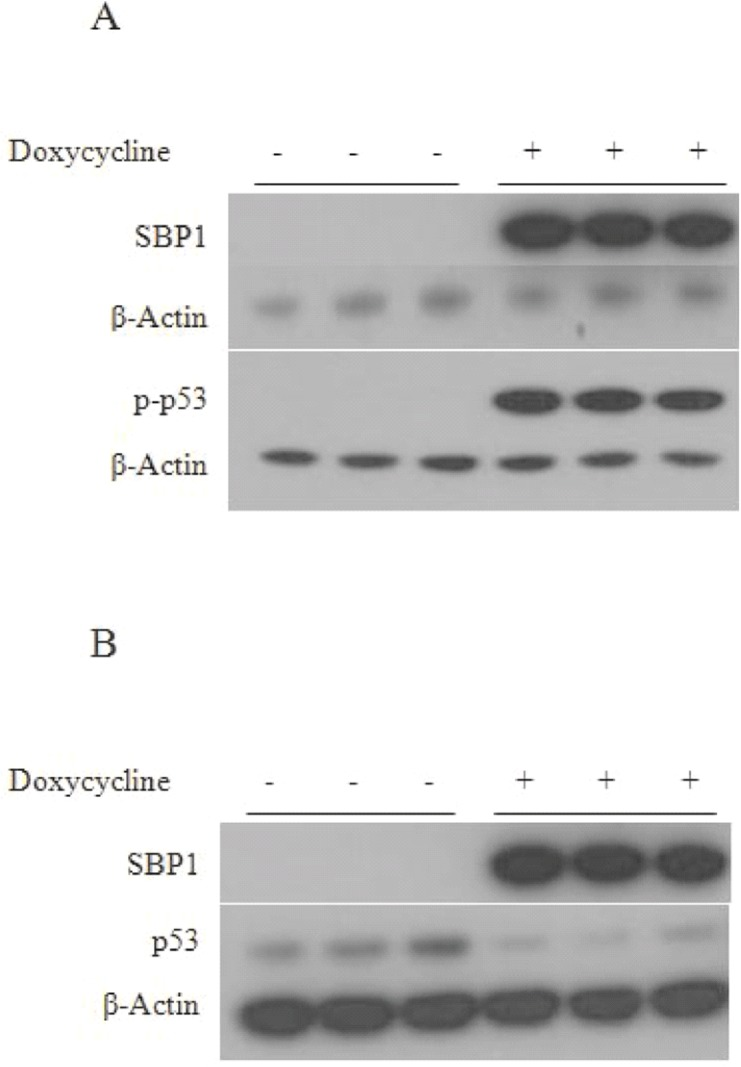 SBP1 induction results in an increase in phospho-p53 and a decrease in total p53 in HCT116 cells. Total cell extracts from doxycycline treated or non-treated HCT116-TetSBP1 cells were analyzed using immunobloting for changes in phosphorylated Ser15 on p53 (A) and total p53 (B) levels in response to induction of SBP1 using anti-human SBP1, phospho p53-Ser15, p53, and β-Actin antibodies. β-Actin was used as an endogenous control.