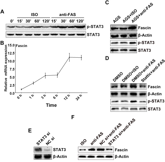 Activation of Fas signaling upregulated <t>Fascin</t> expression in AGS cells through activation of STAT3. The AGS cells were stimulated with 5 μg/ml of anti-Fas in the indicated times. (A) The phosphorylated STAT3 was detected by Western blot. (B) The expression of Fascin mRNA was assayed by real-time PCR. (C) After stimulation with 5 μg/ml anti-Fas for 24 h, the protein level of phosphorylated STAT3 and Fascin in AGS cells was detected by Western blot. (D) The AGS cells were pre-treated with 10 μM of Stattic for 2 h and followed by 5 μg/ml of anti-Fas stimulation for 24 h; the protein level of phosphorylated STAT3 and Fascin was detected by Western blot. After transfection with STAT3 <t>siRNA</t> or NC siRNA for 36 h, (E) the STAT3 expression in the AGS cells was detected by Western blot; (F) the AGS cells were then stimulated with 5 μg/ml of anti-Fas for 2 h, and the Fascin expression in the cells was detected by Western blot. Data are representative of three independent experiments.