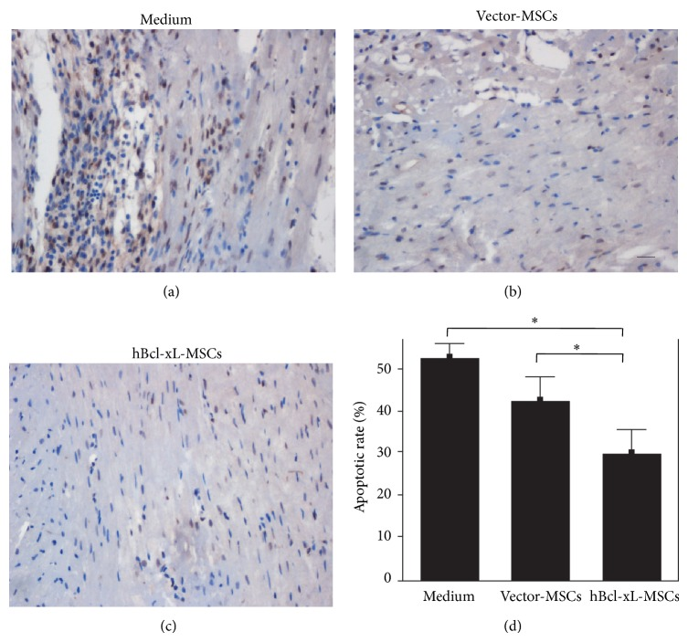 Antiapoptotic effect of hBcl-xL-MSCs in vivo . ((a)–(c)) TUNEL assay was performed at 4 weeks after transplantation of medium (a), vector-MSCs (b), or hBcl-xL-MSCs (c). TUNEL-positive cells were defined as cells with clear brown-colored nuclear labeling. (d) The apoptotic rate was presented as the ratio of the area of TUNEL-positive cell nuclei and the area of total cell nuclei. Values are mean ± SD ( n = 6, ∗ P