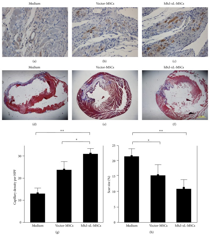 hBcl-xL-MSCs promoted angiogenesis and prevented scar formation in infarcted heart. ((a)–(c)) Evaluation of capillary density by von Willebrand factor staining at 4 weeks after transplantation of medium (a), vector-MSCs (b), or hBcl-xL-MSCs (c). ((d)–(f)) Assessment of scar formation by Trichrome-Masson staining at 4 weeks after medium (d), vector-MSCs (e), or hBcl-xL-MSCs (f) transplantation. (g) Capillary density was presented as the number of vessels per high-power field. (h) Scar size was presented as the percentage of the collagen deposition area to the whole section area of the left ventricle. Values are mean ± SD ( n = 6, ∗ P