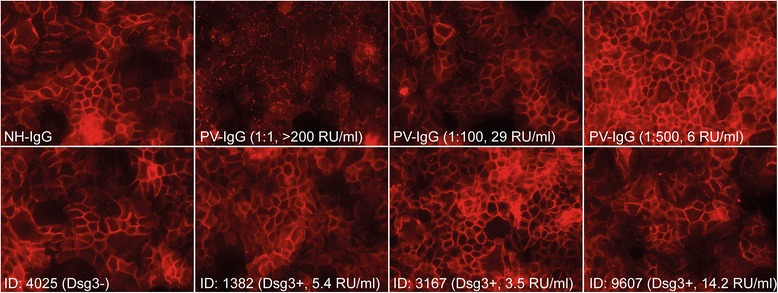 Anti-Dsg3 autoantibodies detected in healthy blood donors do not lead to Dsg3 internalization in vitro . HaCaT cells were incubated with <t>IgG</t> from healthy individuals (NH-IgG), IgG from a pemphigus vulgaris patient (PV-IgG) or with Dsg3-positive plasma samples from healthy blood donors (samples #1382, #3167 and #9607), as well as with a Dsg3-negative sample (sample #4025). For all experimental conditions ( n = 3), the IgG concentration was 1 mg/ml (with the exception of the diluted PV-IgG samples). While NH-IgG and 4025 did not induce Dsg3 internalization, PV-IgG at 1:1 and 1:100 dilutions led to Dsg3 internalization. At low dilutions, PV-IgG and all tested Dsg3-positive samples from healthy blood donors did not show any effects on Dsg3 internalization