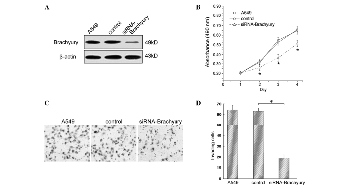 Impact of Brachyury expression on cell proliferation and invasion. (A) Expression of Brachyury following knockdown with siRNA in A549 cells. (B) Cell proliferation capacity of A549 cells was reduced following Brachyury knockdown ( * P