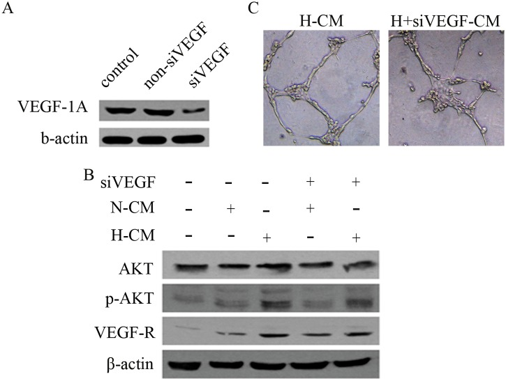 Hypoxia pretreatment of BM-MSCs modulates VEGF/AKT signaling in HUVECs. (A) The expression of VEGF-1α was suppressed with lentiviral-mediated siRNA-VEGF-1α (siVEGF). (B) CM generated from hypoxia pretreated BM-MSCs treated with siVEGF downregulated the expression of pAKT and VEGFR in HUVECs, as determined by western blot. (C) The capacity of HUVECs to form tubes was inhibited by CM from VEGF-1α-silenced BM-MSCs.