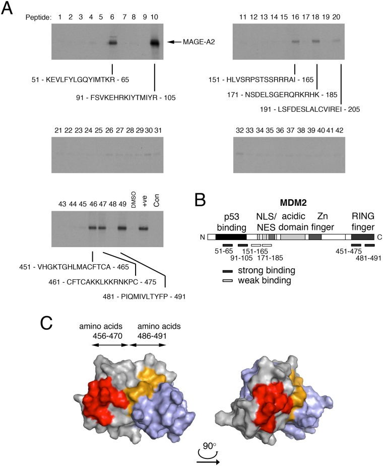MAGE-A2 interacts with specific sites in MDM2. (A) Pepscan assays (pull-down experiments) were conducted in which a series of 15-mer biotinylated peptides (numbered 1–49) overlapping by 5 or more amino acids and representing the entire MDM2 amino acid sequence were coupled to streptavidin-sepharose beads and used to capture 35 S-labelled, in vitro—translated MAGE-A2. The co-precipitating MAGE-A2 was detected by SDS-PAGE followed by fluorography. The control pull-down (bottom left hand panel) was a peptide representing the BoxIV/V region of p53 which we previously established binds very tightly to MAGE-A2 [ 12 ]. (B) Schematic showing the regions represented by the interacting peptides in the pull-down assay. Strong and weak binding sites are indicated in the context of important functional domains within the MDM2 protein. The data are representative of three independent experiments. (C) The model shows a dimer of MDM2 RING fingers, based on the published 3D structure (Protein Data Bank accession number: 2HDP). The two identical subunits in the dimer are represented in grey and light blue respectively. The image on the right hand side was obtained by rotating the 3D structure by approximately 90° to the right in the horizontal plane. The location of the MAGE-A2 binding peptides are shown on one subunit: amino acids 456–470 are represented in red while amino acids 486–491 are shown in light orange.