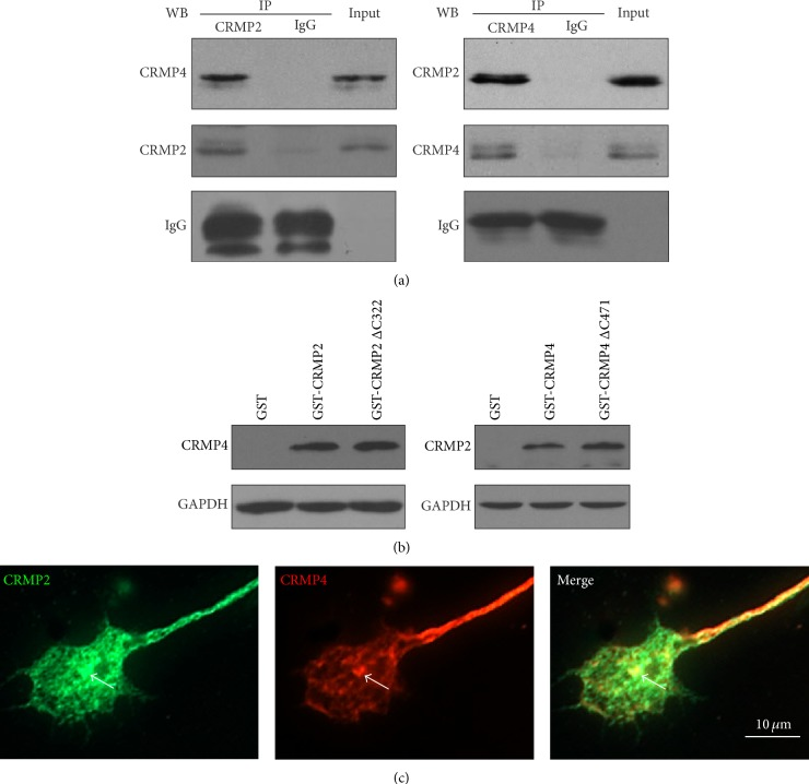 CRMP2 and CRMP4 form complexes in growth cones. (a) Growth cones lysates from rat brain were subjected to glutathione S-transferase- <t>(GST-)</t> pulldown assays using GST-CRMP2 or GST-CRMP4. The retrieved sediments were subjected to western blot analysis using the CRMP4 or CRMP2 antibodies. The GAPDH antibody was used to show equal loading. (b) Growth cones lysates from rat brain were subjected to coimmunoprecipitation (Co-IP) assays with rabbit CRMP2 and CRMP4 antibodies, and the resulting sediments were subjected to western blot analysis with mouse CRMP4 or CRMP2 antibodies. (c) Rabbit anti-CRMP2 and mouse anti-CRMP4 antibodies were used to detect endogenous proteins in the growth cones of hippocampal neurons. Scale bar: 10 μ m.