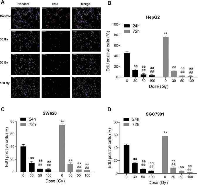 137 Cs gamma-ray irradiation inhibits DNA synthesis in tumor cell lines in vitro . After 137 Cs gamma-ray irradiation (0, 30, 50 and 100 Gy), HepG2, SW620 and SGC7901 cells separated from human erythrocytes were cultured for 24 h, and then DNA synthesis was detected by 5-ethynyl-2'-deoxyuridine (EdU) incorporation. Representative DNA synthesis (scale bar: 200 μm) of HepG2 cells at 24 h after irradiation with 0, 30, 50 and 100 Gy (A). DNA synthesis in HepG2 (B), SW620 (C) and SGC7901 (D) cells at 24 h and 72 h after irradiation. Date are means ± SEM; n = 6 erythrocyte samples from 6 volunteers in each group. ** P