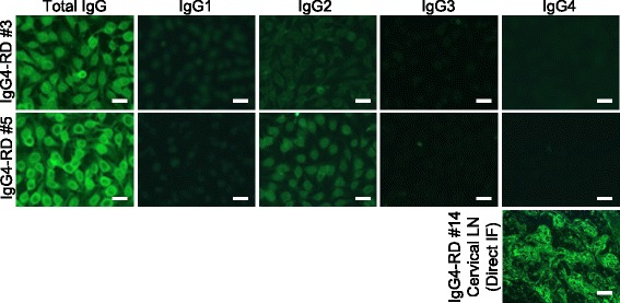Subclass-based ANA test in IgG4-RD, showing immunofluorescence microscopy of two typical IgG4-RD cases (IgG4-RD #3 and #5). Lower right panel: We confirmed the second antibody's function by direct immunofluorescence of a lymph node specimen (IgG4 + /IgG + plasma cell ratio = 0.69) from an IgG4-RD patient (IgG4-RD #14). Bar = 20 μm
