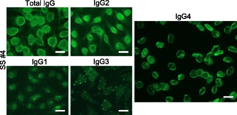 Subclass-based ANA test of a patient with Sjögren's syndrome (SS #4) showing IgG4-type ANA. ANA patterns differed among IgG subclasses. Total IgG showed Speckled, while IgG2 showed Speckled + Cyto, IgG1 and IgG3 showed Nucleolar + Cyto (with atypical cytoplasmic spots), and IgG4 showed Peripheral. Bar = 20 μm. Cyto: cytoplasmic