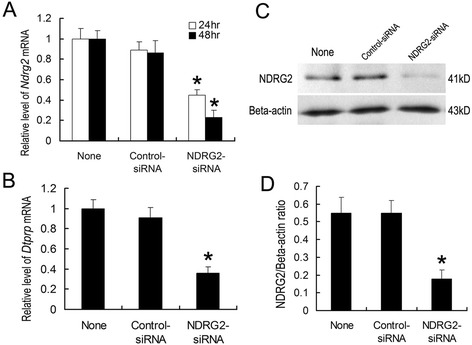 Down-regulation of NDRG2 expression in ESCs inhibits in vitro decidualization. Cultured mouse ESCs were transfected with NDRG2 -targeting siRNAs (100 nM) (a non-targeting siRNA was used as a control) at the time of plating. Quantitative PCR analyses of NDRG2 mRNA expression ( a ) and DTPRP mRNA expression ( b ) in ESCs transfected with NDRG2 -targeting siRNAs or non-targeting siRNAs at 24 h and 48 h. Western blot ( c ) and densitometric analyses ( d ) of NDRG2 protein levels in ESCs at 72 h after transfection. The relative fold induction of NDRG2 protein expression compared with its expression in non-siRNA-treated group is shown. The values represent the mean ± SEM, as determined from three separate experiments. *, significantly different ( P