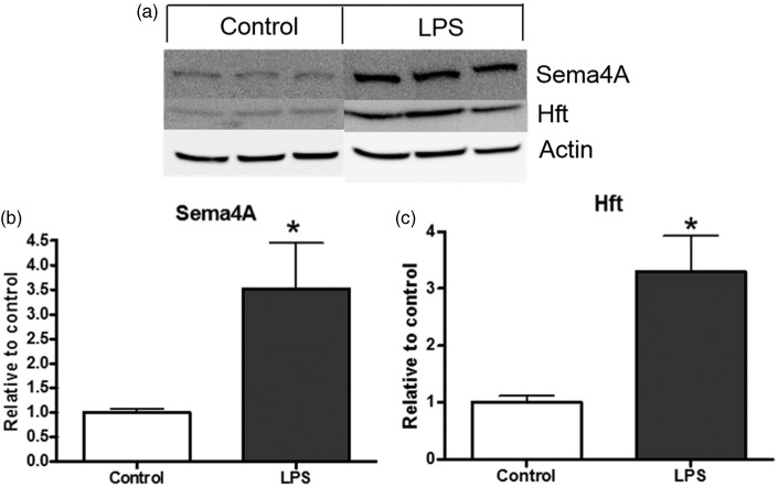 Sema4A is increased after microglial activation with LPS. (a and b) Sema4A is expressed by rat primary microglia and is increased upon activation with 0.8 µg/mL LPS for 24 hr. Hft is also increased after LPS treatment, indicating activation of the microglia. Data are representative of three independent experiments, completed in triplicate. Protein quantification is relative to beta-actin loading control. Values represent average ± SEM . Student's t test was used to determine significance. LPS = lipopolysaccharide; Hft = H-ferritin. * p