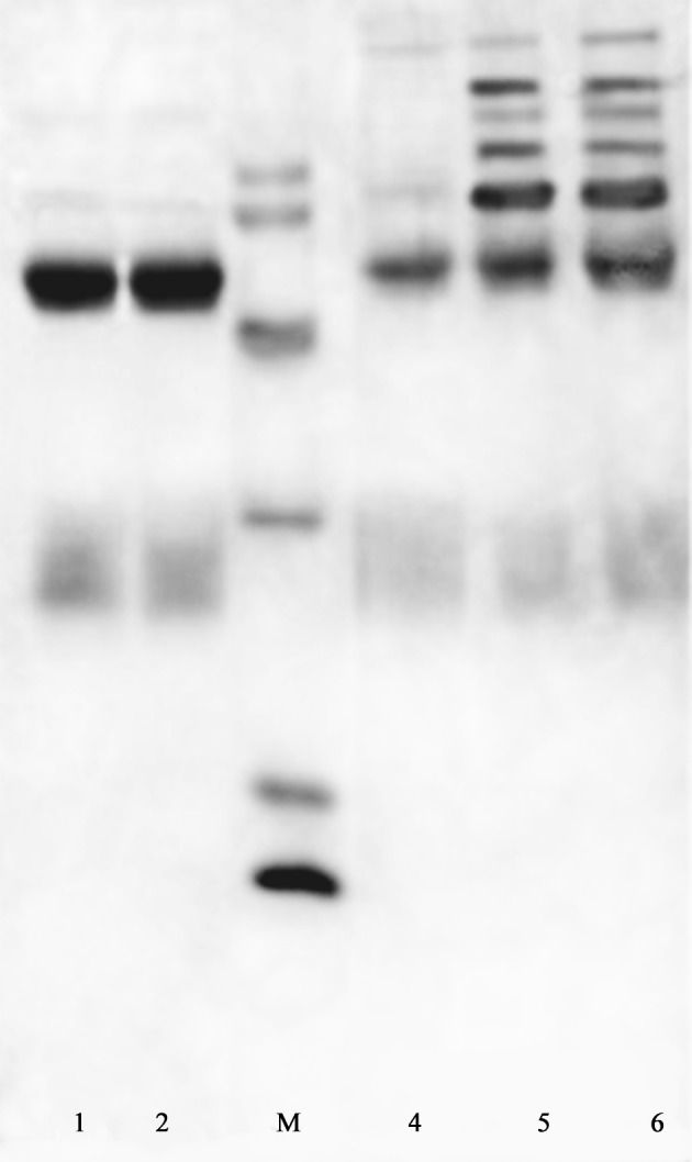 SDS-PAGE Pattern of Different Fractions of Ion Exchange Chromatography for Purification of IgG Against AFM1 Under Reducing Conditions Followed by Coomassie Blue R250 Staining. Lanes 1 and 2 shows the first peak containing purified antibody, lane 4 and 5 correspond to the second and third peaks respectively. M shows the protein markers with the MW of 94, 66, 45, 30, 20 and 14 KDa from up to down.