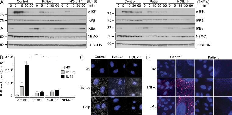 Impaired TNF- and IL-1β-induced NF-κB activation in the HOIP-deficient patient. (A) Time-course of IL-1β–stimulated (left) or TNF-stimulated (right) SV40-immortalized fibroblasts from control, HOIP-, and HOIL-1–deficient patients, with immunoblotting for phospho-IKK (p-IKK), IKKβ, IκBα, NEMO, and β-tubulin. (B) IL-6 production upon stimulation with TNF and IL-1β in SV-40 fibroblasts from two controls, HOIP- (Patient), HOIL-1–, and NEMO-deficient patients (errors bars indicate the SEM; 3 independent experiments). Unpaired Student's t tests were performed for the statistical analysis (**, P