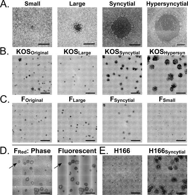 Plaque morphologies in HSV-1 stocks, before and after plaque purification. Lab-passaged stocks of classical HSV-1 KOS and F strains contain multiple plaque morphologies. (A) With multiple rounds of limiting dilution, distinct plaque morphologies can be separated into populations that breed true and exhibit greatly reduced diversity (see Table 1 for details). (B) HSV-1 KOS can be separated into large, syncytial, and hypersyncytial variants. (C) HSV-1 F can be separated into large, syncytial, and small variants. (D) We used a previously described BAC-cloned HSV-1 F genome that has been modified to encode an mRFP fusion to the viral capsid ( 38 ). Recovery of this cloned genome into mammalian cells regenerates the plaque-morphology diversity observed in HSV-1 F stocks. Phase and fluorescence images reveal that in addition to diversity in plaque morphology, fluorescently tagged viral stocks exhibit diversity in fluorescence (additional images can be found in Fig. S1 in the supplemental material). (E) The low-passage-number clinical isolates HSV-1 H166 and H166 Syncytial are distinct strains isolated from the cerebrospinal fluid of the same patient during an episode of viral meningitis. The size and appearance of cytopathic and syncytial plaques mirror those seen in the lab-isolated variants of HSV-1 KOS and F. Viruses were plated at limiting dilutions on monolayers of Vero cells and then fixed and stained with methylene blue at 72 hpi. Images were exported from Nikon NIS-Elements software. Contrast was inverted using Adobe Photoshop to show plaques more clearly. Bars: 1 mm (A), 5 mm (B, C, and E), and 2 mm (D). Further quantifications of plaque size distribution and frequency are found in Fig. 2 and Tables 1 and 2 .